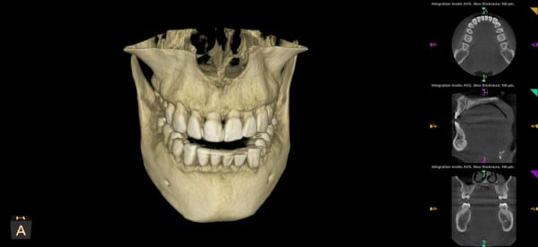 the smile doctor 3d imaging front view