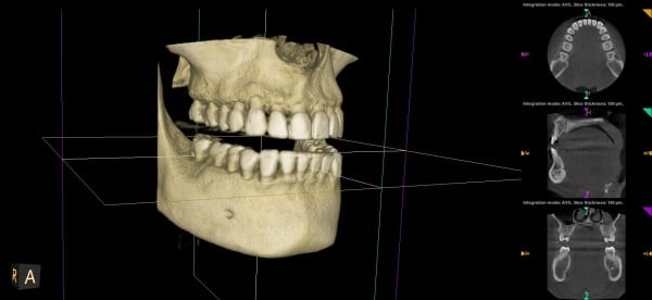the smile doctor 3d imaging right view