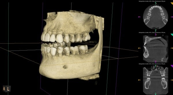 the smile doctor 3d imaging left view