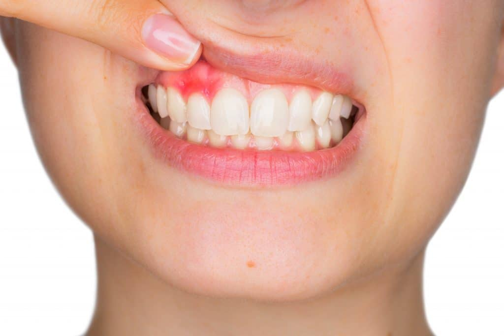 the smile doctor oral inflammation