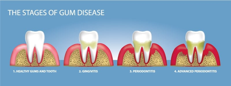 the smile doctor stages of gum disease